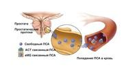 Простатический специфический антиген (ПСА) общий